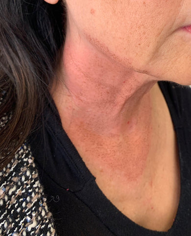Carbon crusts- Fibroblast Plasma Skin Tightening