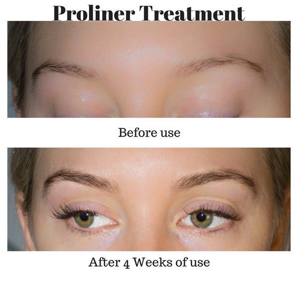 Lash Growth Treatment - Serum - LAshX® PRO/Line Treatment - LAshX - Healthier Lash Extensions Better Lash Retention