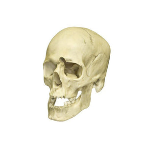 Replica Human Male with a 32-caliber Gunshot Wound Skull
