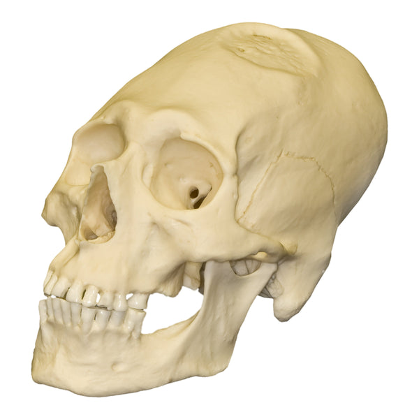 Replica Human Peruvian Male with Cranial Binding & Trephination Skull