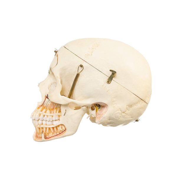 Real Human Skull - Dissected