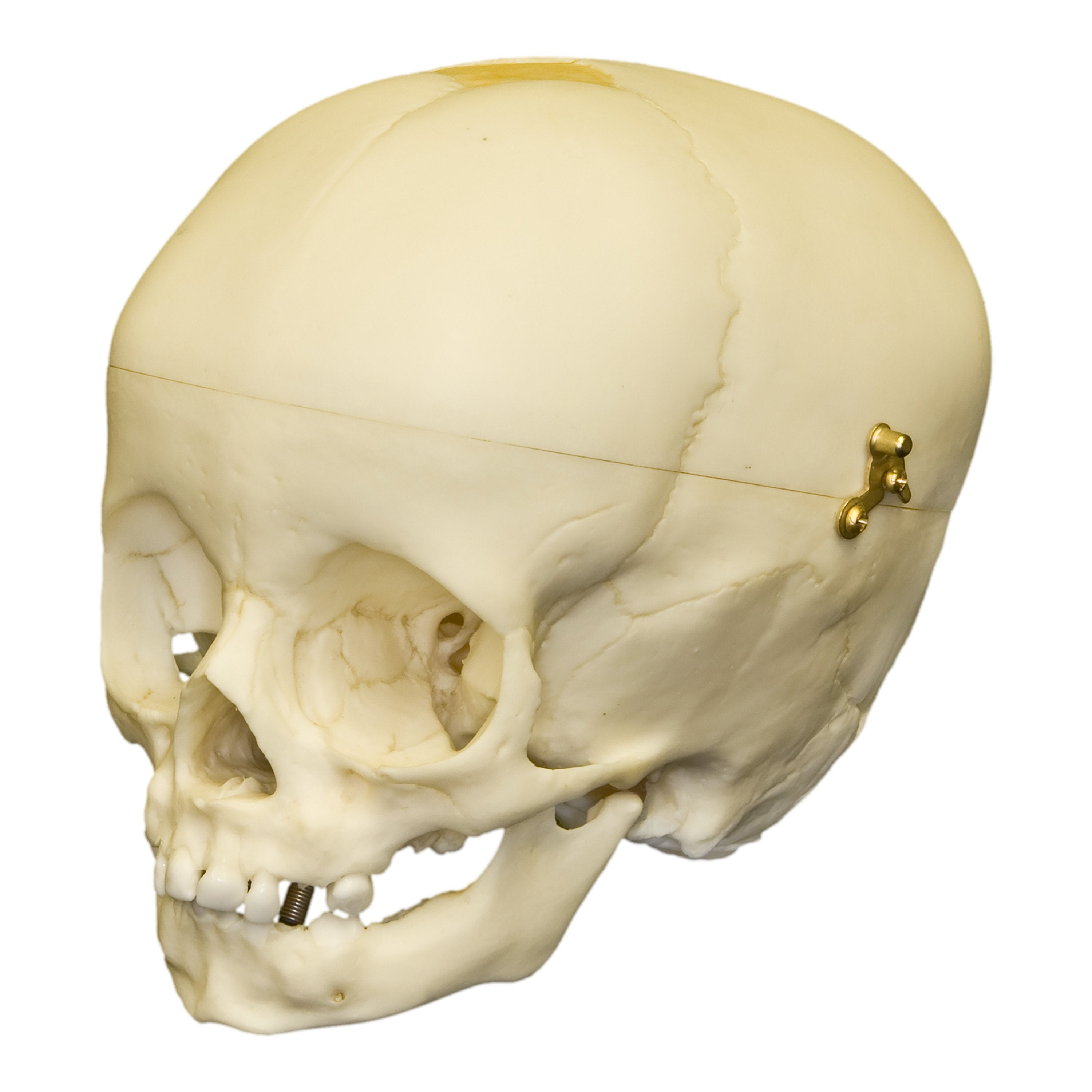 Replica 1-year-old Human Child with Calvarium Cut Skull For Sale ...