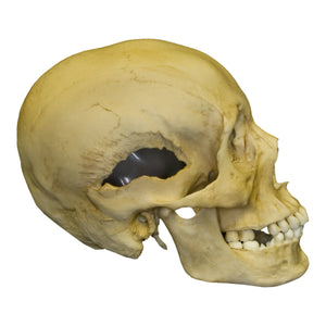 Replica Human Female with Multiple Gunshot Wounds Skull