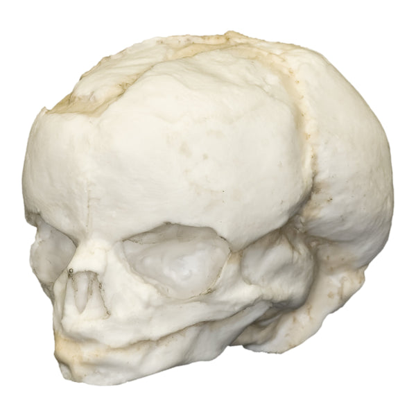 Replica Human Fetal; 17 weeks
