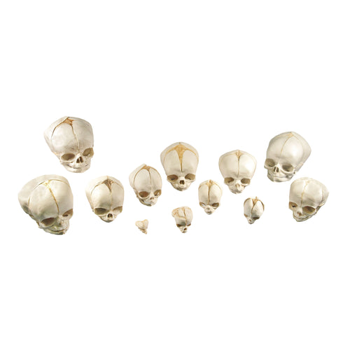 Replica Human Fetal Set of 12