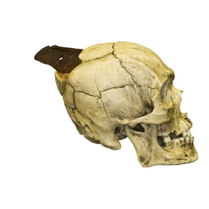 Replica Spanish Conquistador Human with Broad Ax Trauma Skull