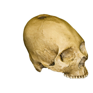 Replica Human Trephined Skull