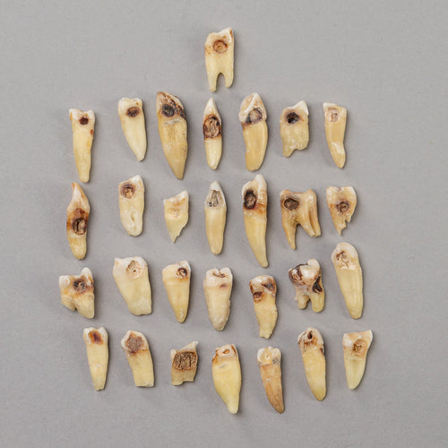 Real Human Teeth with Decay (Single Tooth)