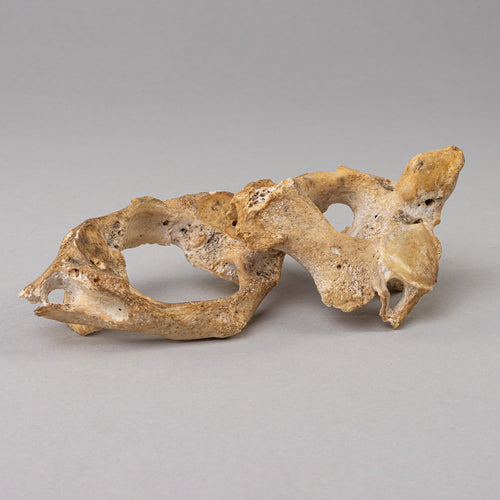 Real Antique Human Vertebrae (Atlas and Axis)