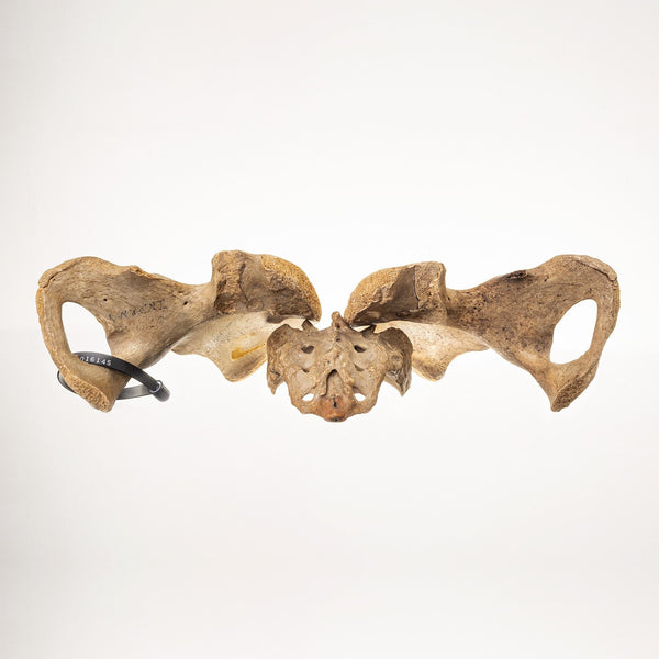 Real Human Pelvis and Sacrum (Antique)
