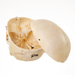 Real Human Skull with Carrying Case (Dissected and Painted)