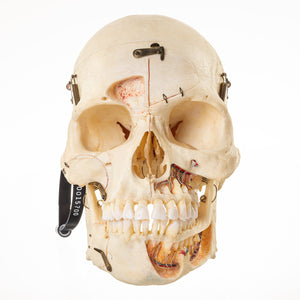 Real Human Skull (Dissected w/ Carrying Case)