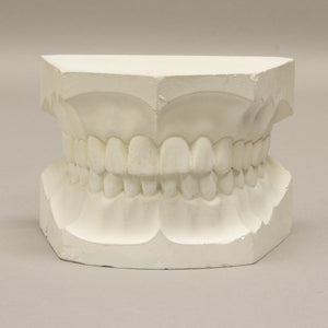 Replica Orthodontic Study Model