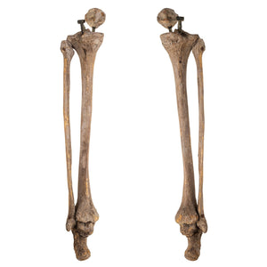 Real Antique Human Legs (Patella, Tibia, Fibula, and Calcaneus)