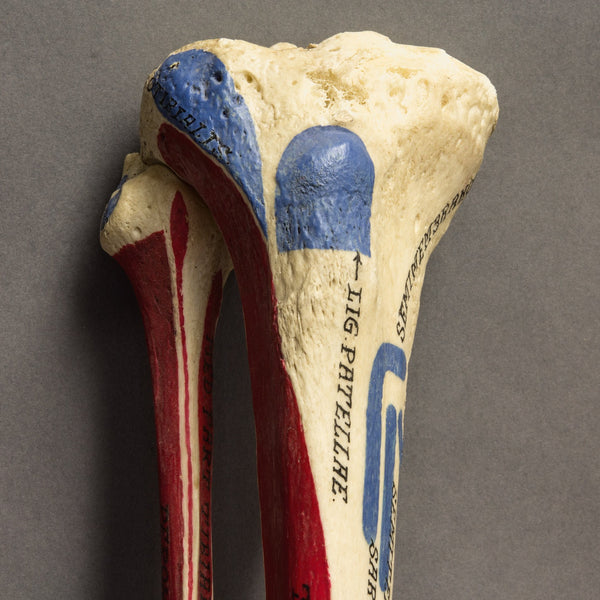 Real Human Tibia and Fibula with Painted Muscles and Insertion