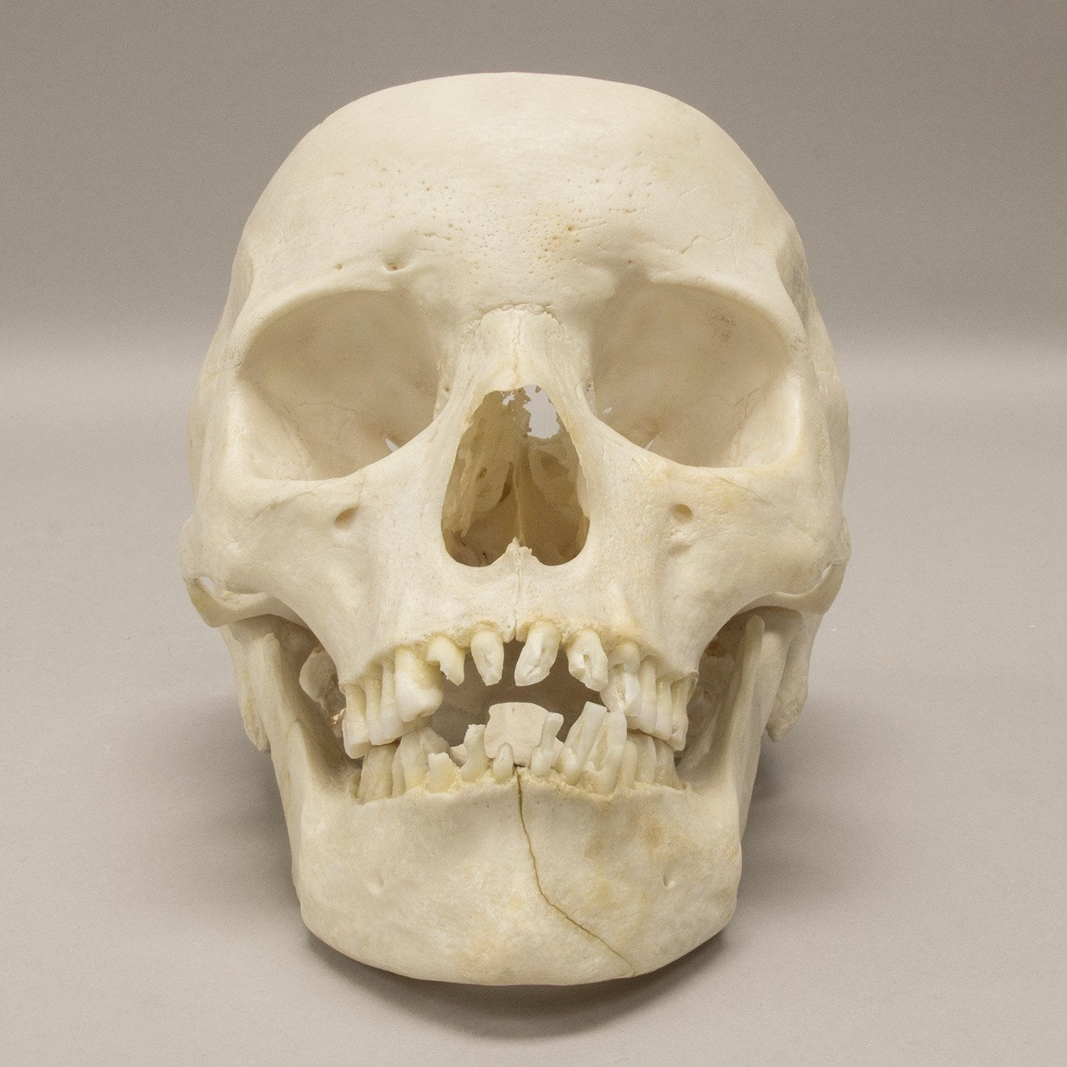 Real Human Skull For Sale Skulls Unlimited International Inc