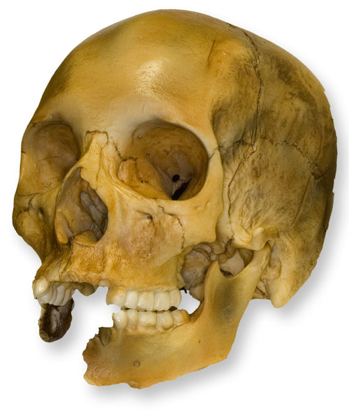 Replica Human Female with Shotgun Wounds Skull