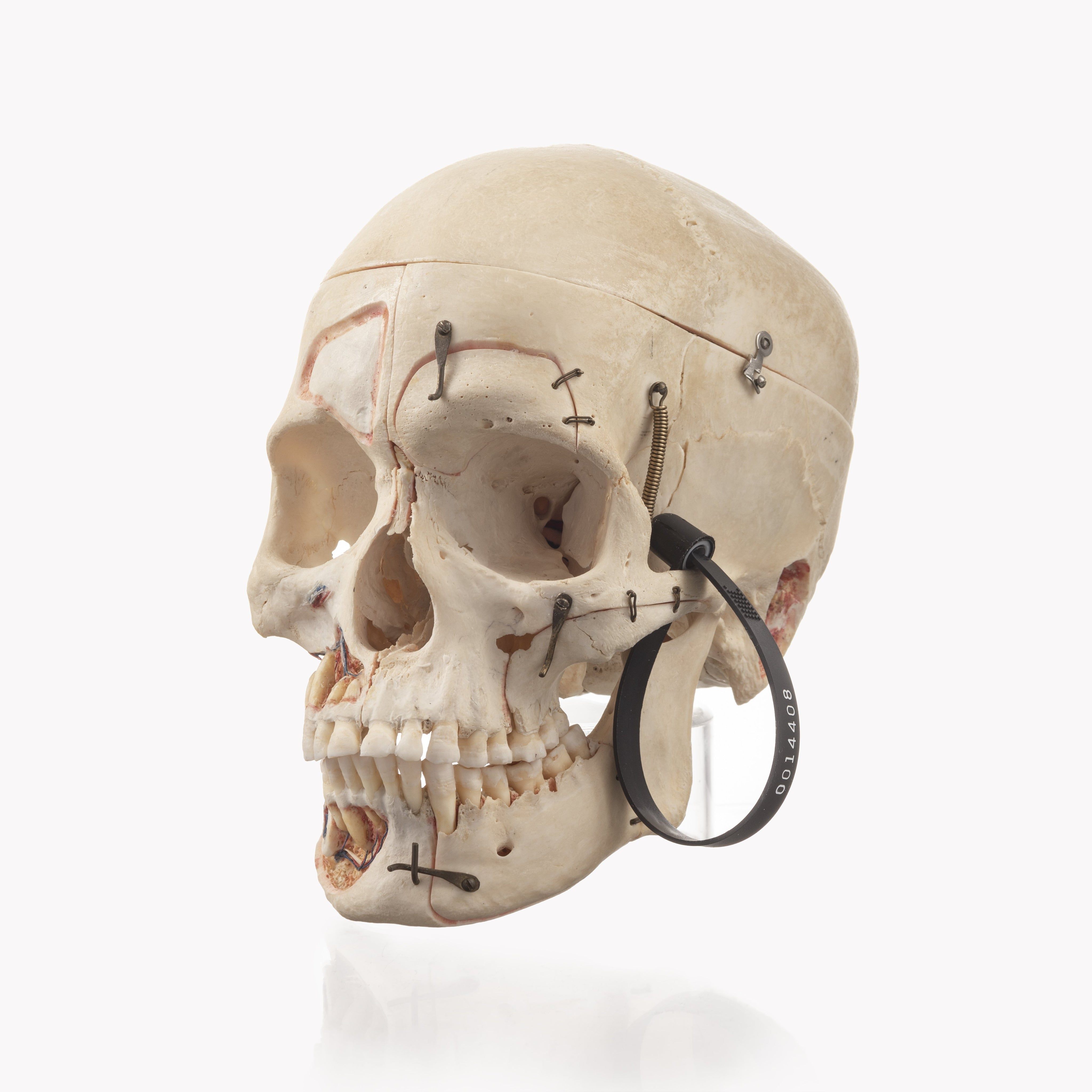 Real Dissected Human Skull For Sale Skulls Unlimited International