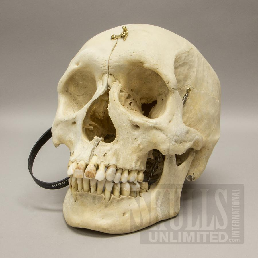 Real Real Human Skull Sagittal Cut With Carrying Case For Sale