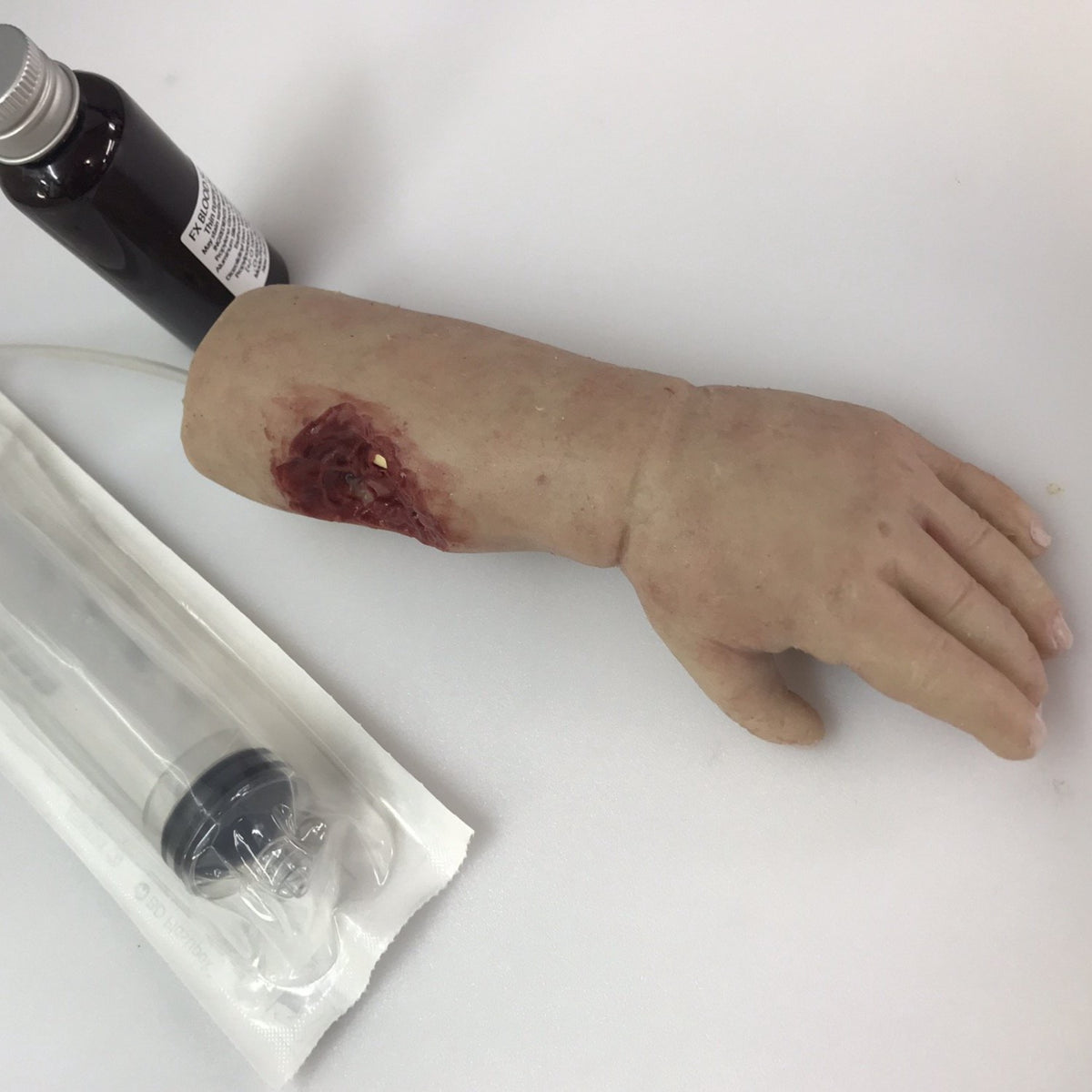 INFANT ARM WITH BITE WOUND