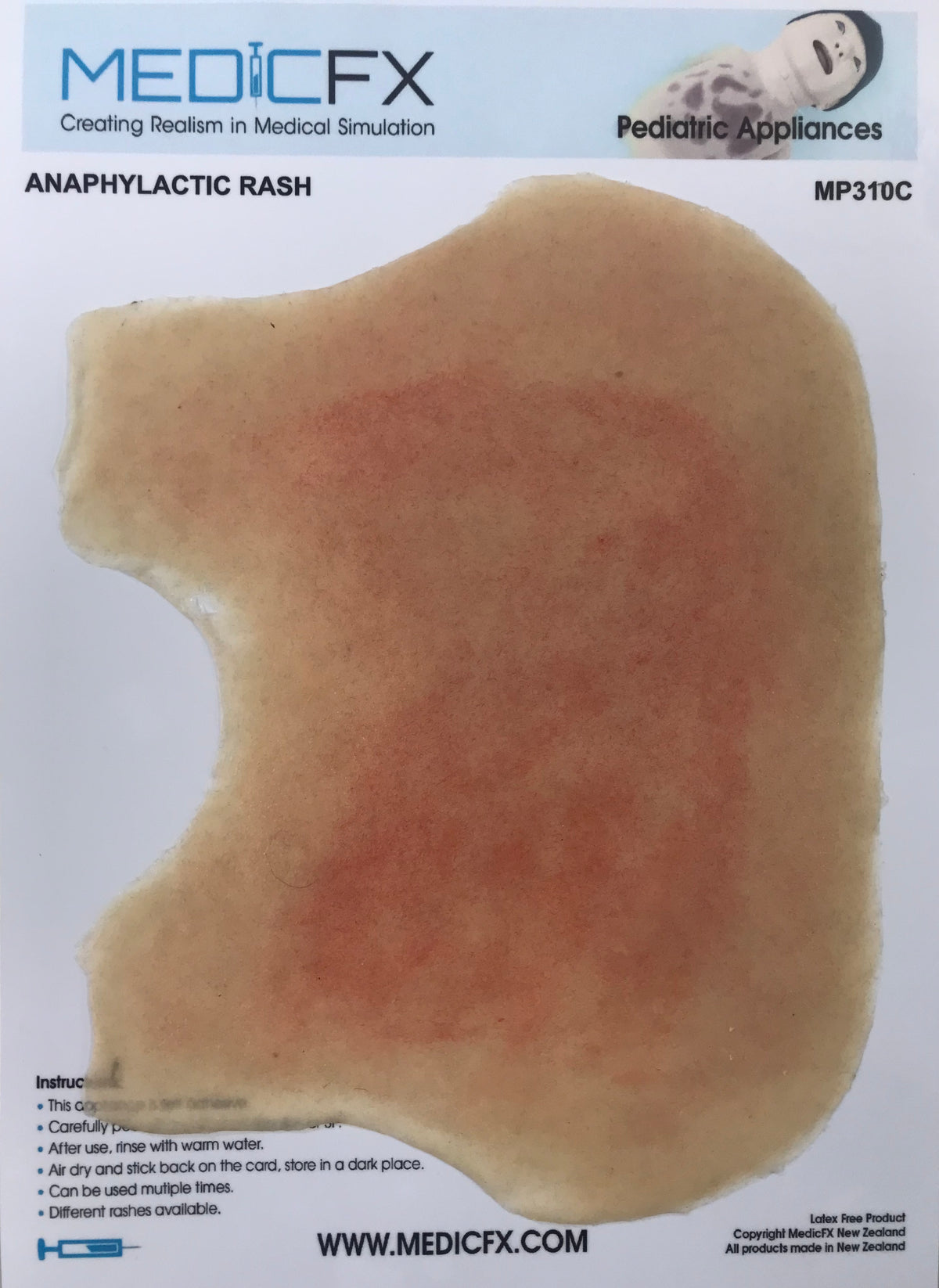 MP310 ANAPHYLACTIC RASH