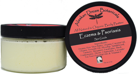 Eczema & Psoriasis Cream - Alaskan Dream Botanicals