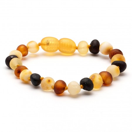 Amber Bracelet Multi Raw (two sizes 14 or 16.5 cm)