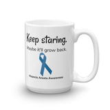 Keep Staring. Maybe It'll Grow Back. Alopecia Awareness Coffee Tea Mug - Choose Size - Sunshine and Spoons Shop