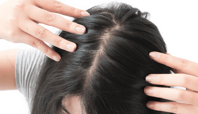 Castor Oil For Hair Growth: 101