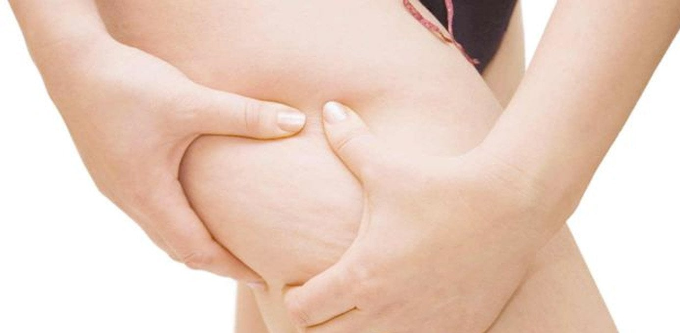 5 Tips to Get Rid Of Cellulite