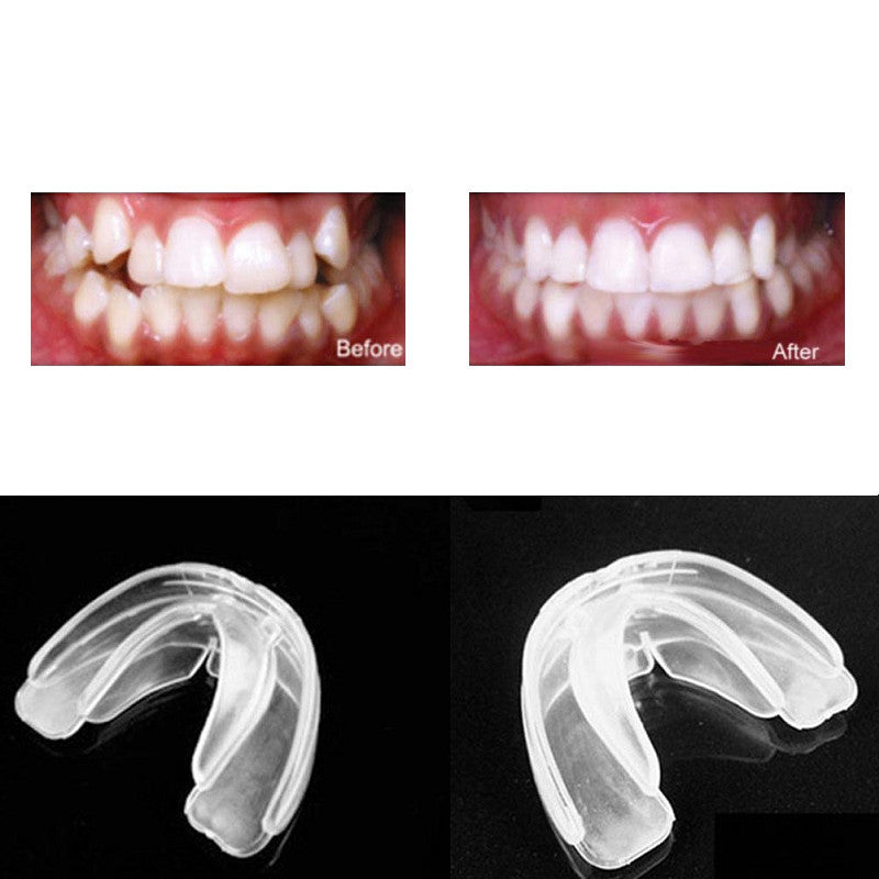 Orthodontic Straight Teeth System