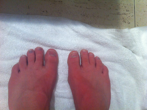 "4 black toenails after my first ""full"" in Mallorca, 2014"