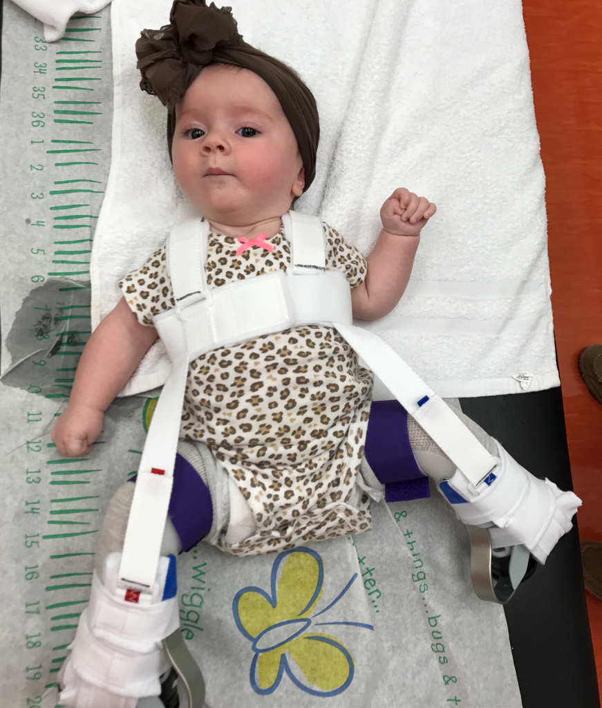 A Clubfoot & Hip Dysplasia Journey: Ellie Kate