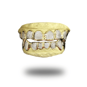 (Custom) White Diamond Dust Grillz *Yellow Gold*