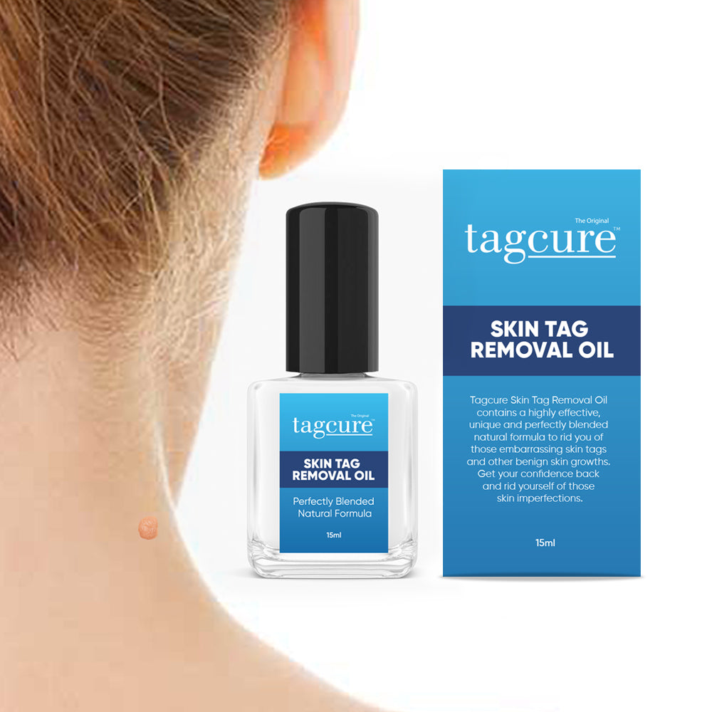 Tagcure Skin Tag Removal Oil by  Tagcure