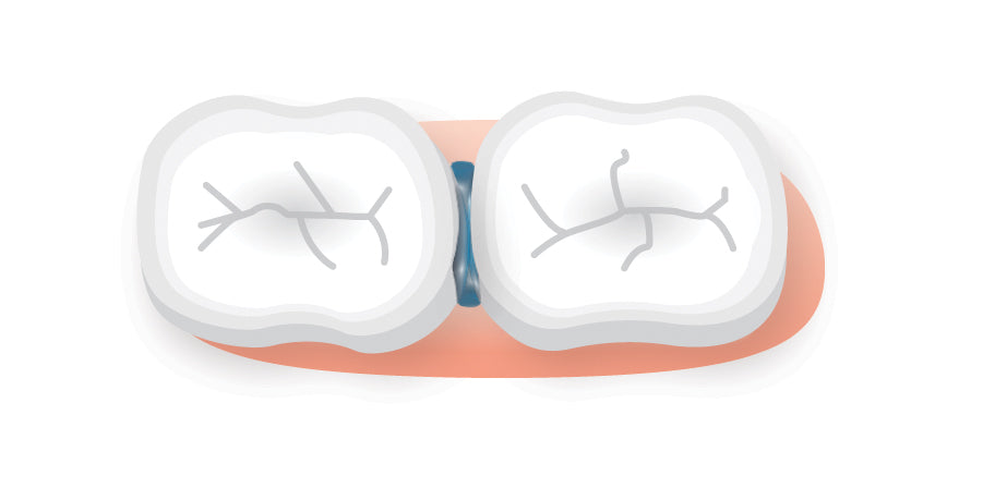 Isocaps prevent traditional fluoride treatments from reaching between the teeth