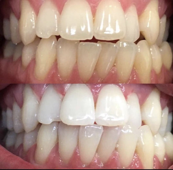 Before & After Results of using Blu Fin's Charcoal Teeth Whitening Scrub