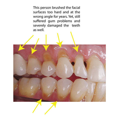tooth abrasion and gum recession