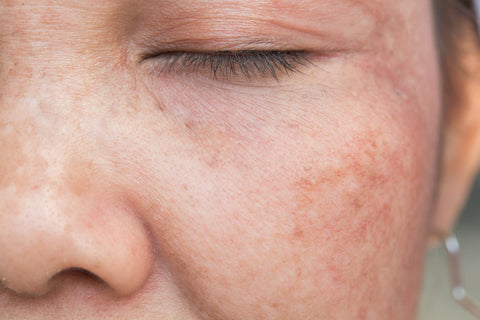 Treatments for Hyperpigmentation and Dark Spots – ieskincare