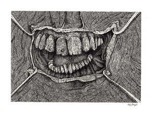 """Teeth"" by Anthony Christopher"
