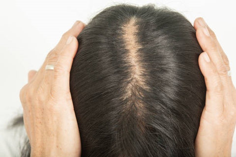 Determine Your Hair Loss Before Buying Toppers