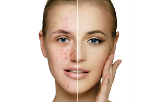 A gentle approach to treating acne - Border Compounding Pharmacy