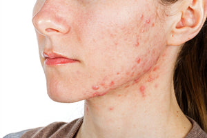 Biofilms and skin disorders