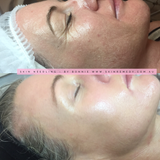 1 x Clinical Skin Needling Collagen Induction Pen