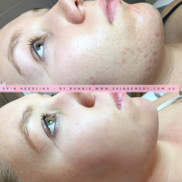 3 x Clinical Skin Needling with Dermapen Only $699 (SAVE $800 Usually $1499)