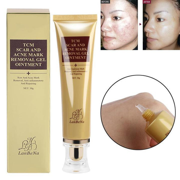 Scar Removal Cream - Scars, Burns, Stretch Marks, & More!
