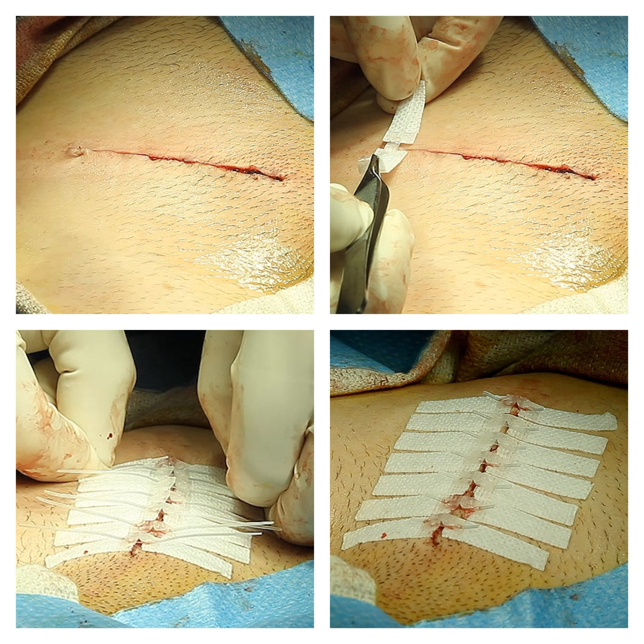 dermaclip non-invasive wound closure used to close an abdominal surgery. needle-free skin closure for surgical incisions