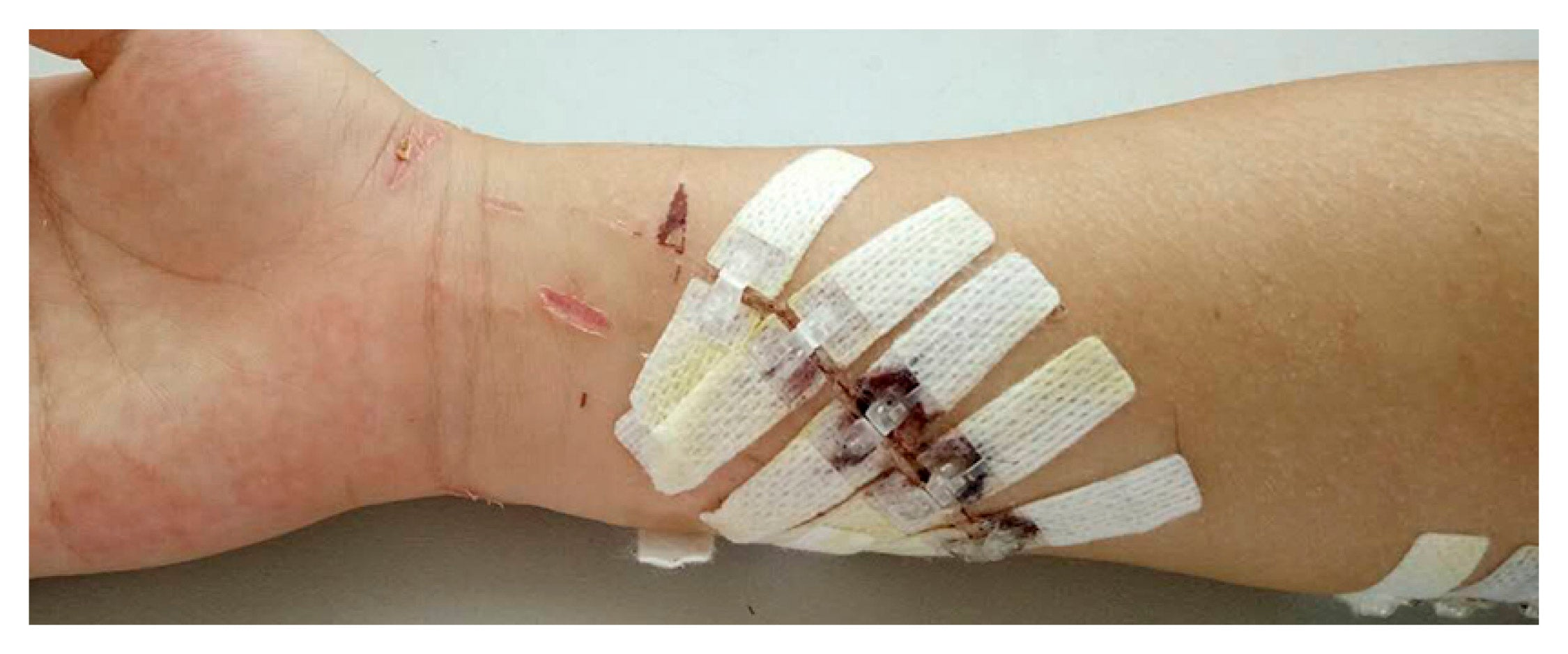 The Regular DermaClip used to close a traumatic arm laceration