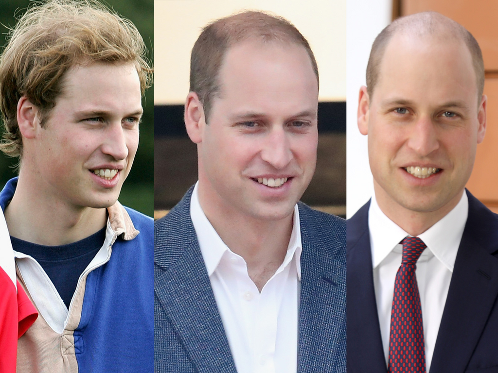 Prince William finally shaved his balding head — here's why it's the best solution for guys with hair loss