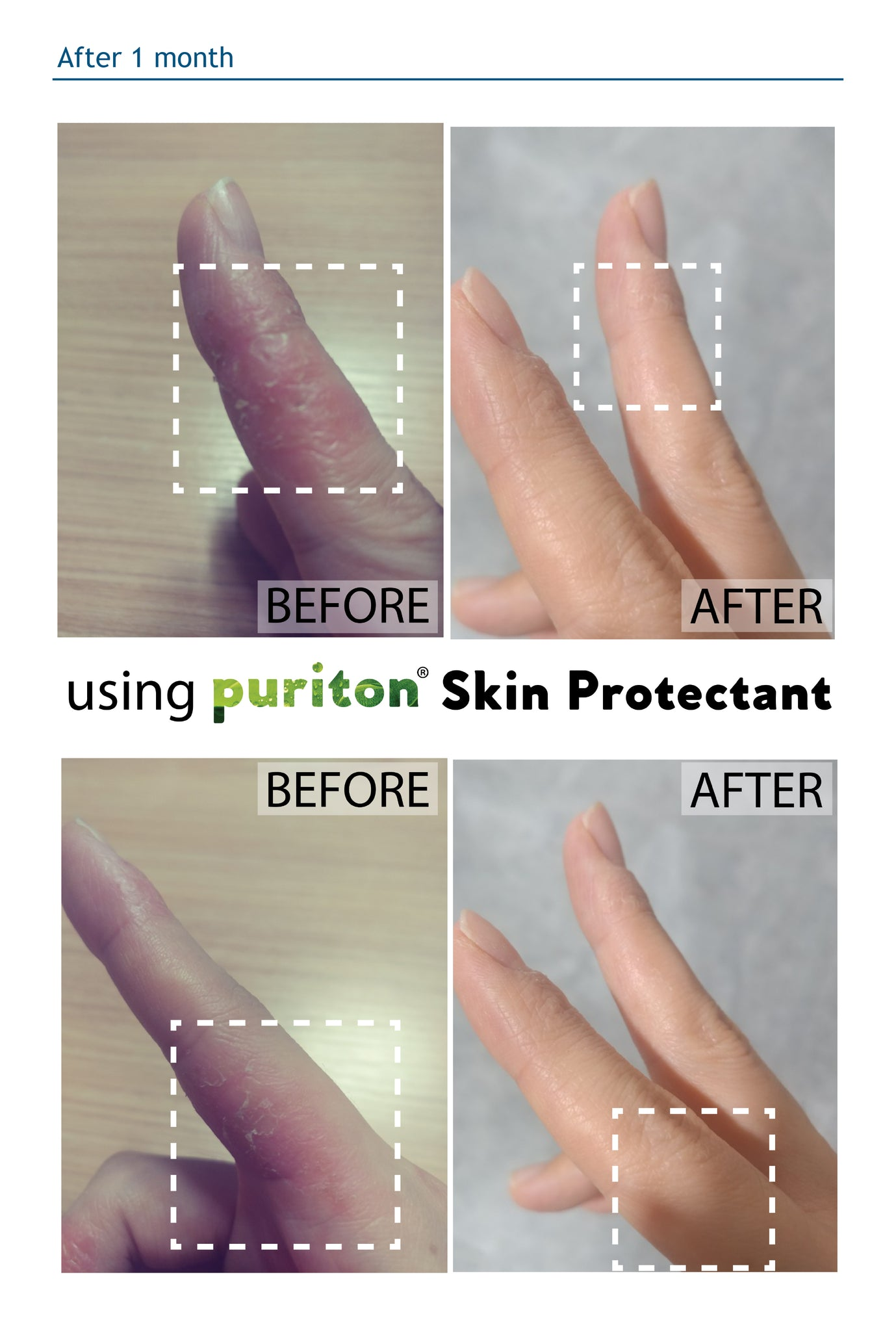 Puriton Mineral water skin protectant